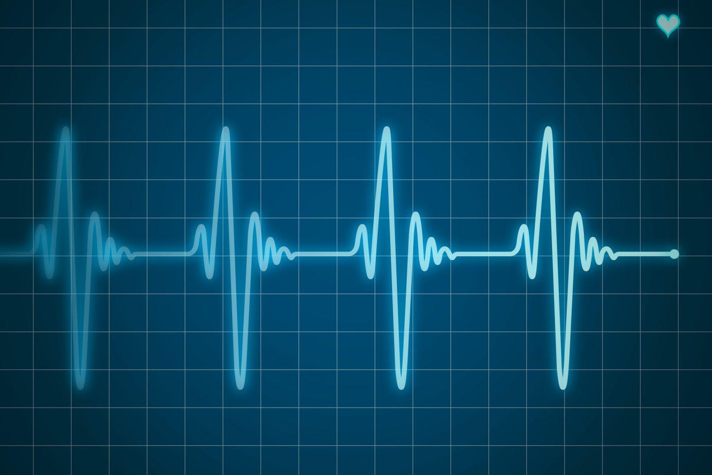 Électrocardiogramme bleu